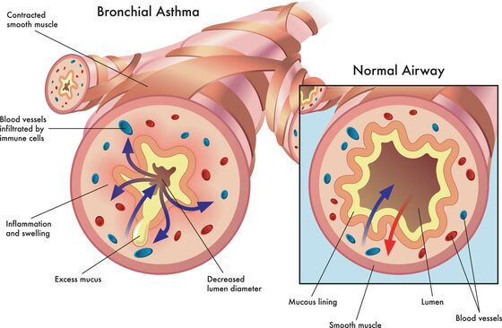medical illustration of the effects of bronchial asthma