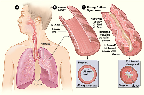 asthma attack causes