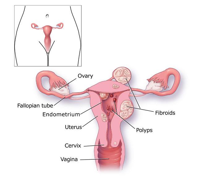 Menorragia causes diagram