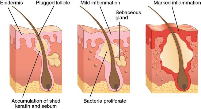 How acne develops under the skin