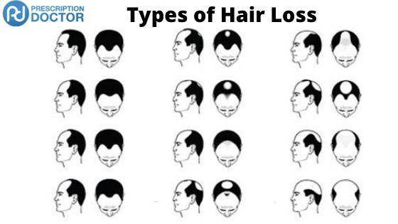 types of alopecia
