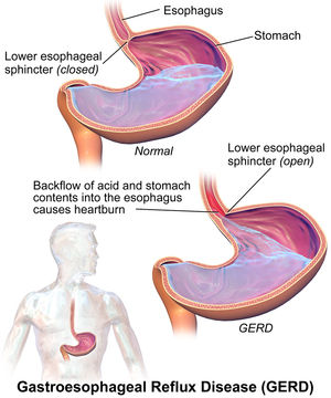Stomach acid entering oesophagus during GERD